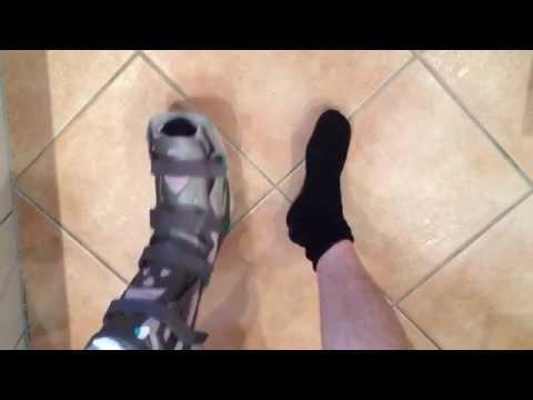 Nachdem es passiert die Schwellung Knie-Arthroskopie