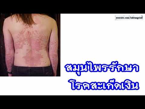 ครีม 999 neurodermatitis