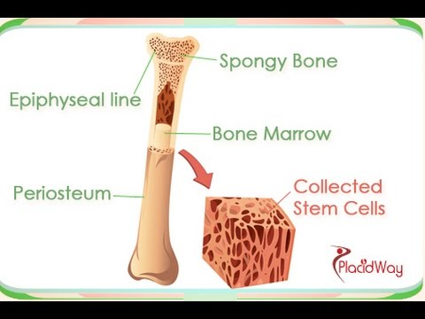 Bone-Marrow-Transplant-in-India