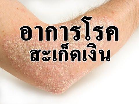 เล็บฝ่าเท้าโรคสะเก็ดเงิน