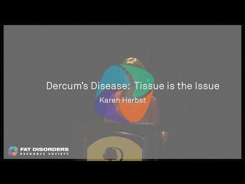 Artroza deformată a articulației umărului drept