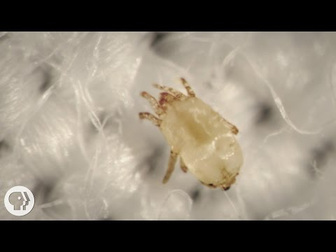 Meet The Dust Mites, Tiny Roommates That Feast On Your Skin  |  Deep Look Mp3
