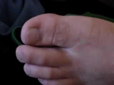 Come lamizily per trattare un fungo su unghie di gambe