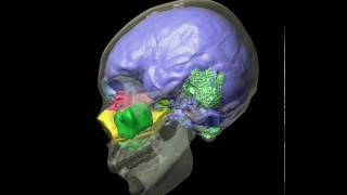 Human skull, brain cast, & air sinuses - Roll