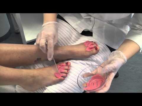 Die Medikamente von gribka der Nägel für die Aufnahme peroral