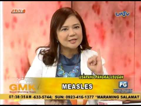 Video Measles: Causes and Symptoms