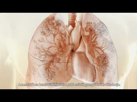 Miért javulnak a dohányzásról való leszokáskor?
