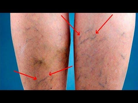 Venele varicoase puternice pe picioare