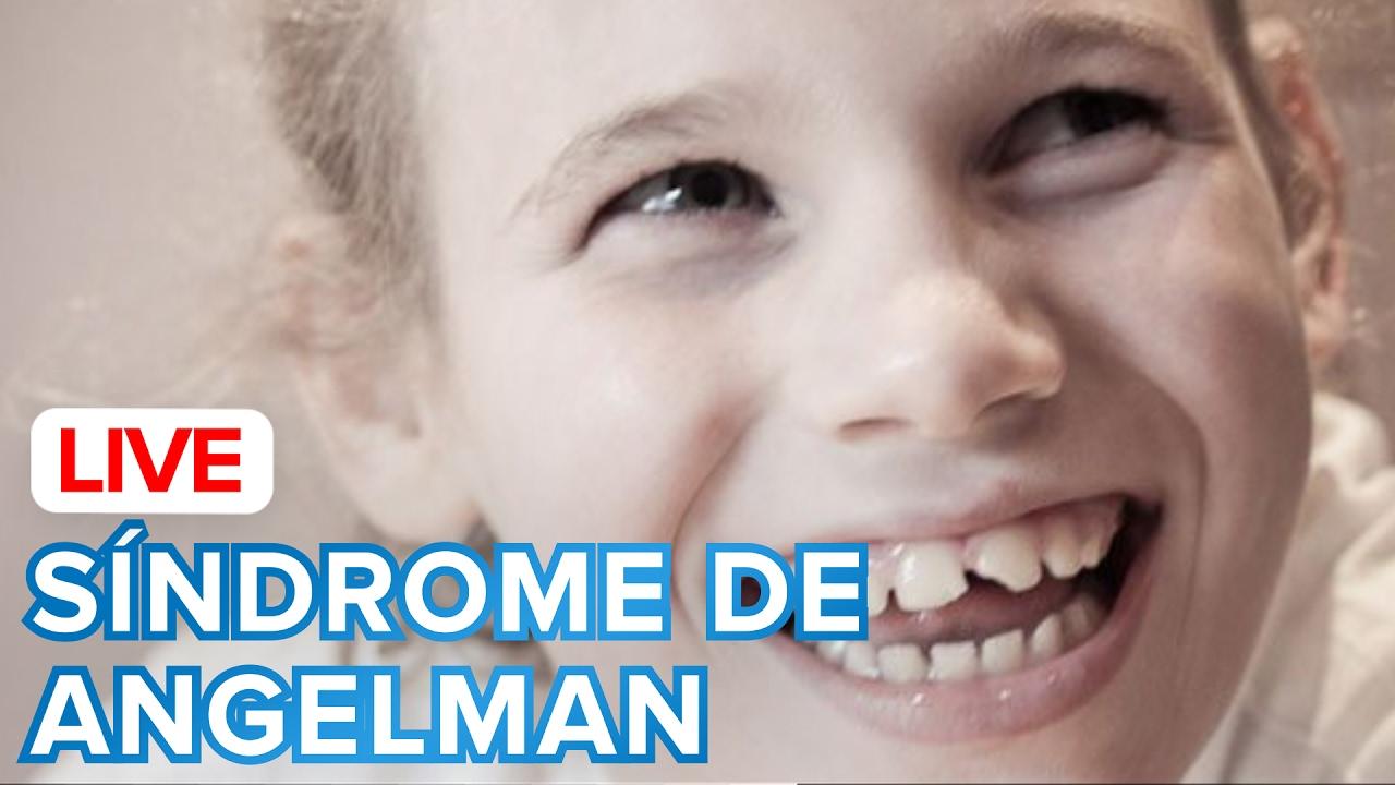 Cómo es el Síndrome de Angelman en los niños | Testimonio de un papá