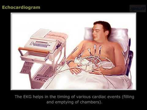 Magas vérnyomás és a modern kezelési módszerek
