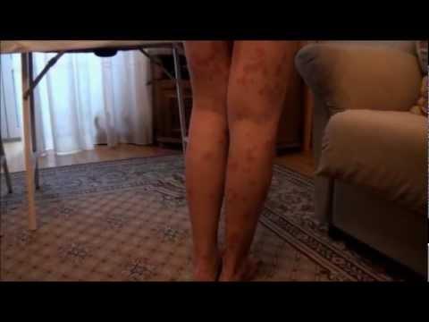 Mesotherapy กับโรคผิวหนังกลาก