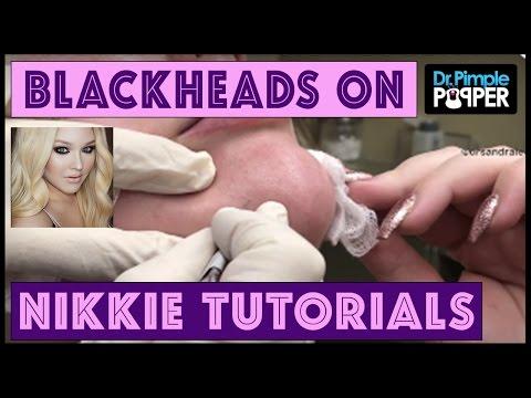 Blackhead Extractions: NikkieTutorials & Dr Pimple Popper!