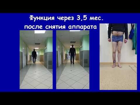 Ложный сустав + остеомиелит голени. 100% восстановление
