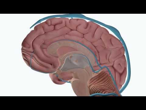 La thrombose des veines profondes des membres le diagnostic