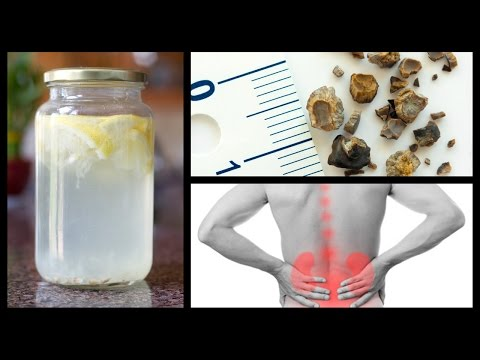 Video Natural Home Remedies for Kidney Stones | Natural Cures