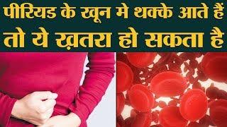 Period Blood में अगर Blood Clots आ रहे हैं तो इसका मतलब क्या है? Oddnaari