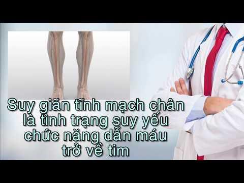 Suy giãn tĩnh mạch chân_BVQT Minh Anh