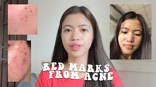 How To Get Rid Of Red Acne Marks (Post-Inflammatory Erythema)