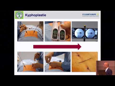 Betrieb aseptische Nekrose des Hüftkopf Behandlungs