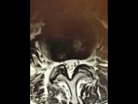 Perché un collo dolorante dopo il massaggio del collo