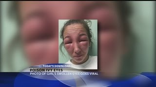 Girl gets poison ivy on eyes