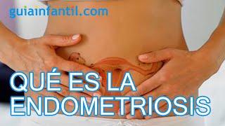 ¿Qué es la endometriosis y cuál es su tratamiento?
