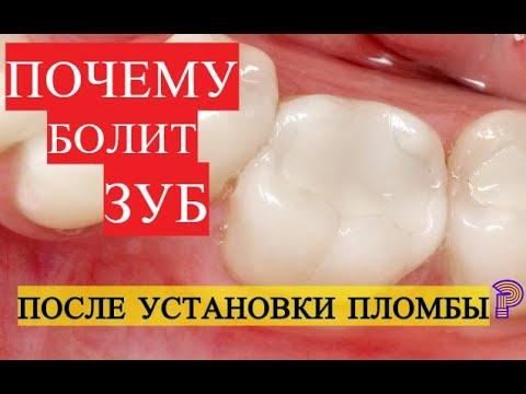 Почему болит зуб после установки пломбы? Просто, понятно и доступно.