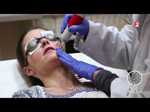 Monetovidnaya leczéma le traitement avec les antibiotiques