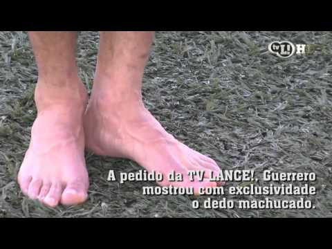 Bolha no pé incomoda Guerrero no Corinthians
