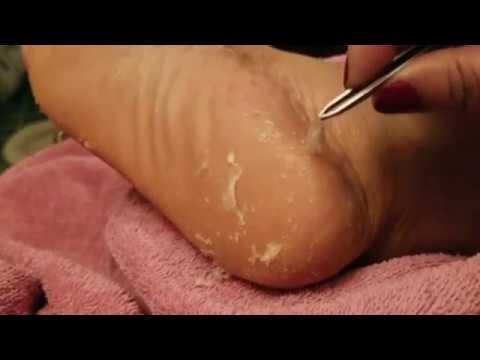 Baby Foot Original Foot Exfoliating Peel Part 2