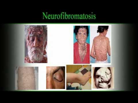 โรคสะเก็ดเงิน boroplyus
