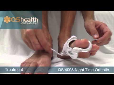 วิธีการรักษาเท้าแบน valgus 9 ปี