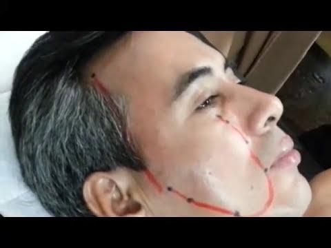 Para el adelgazamiento la manzanilla o el tilo