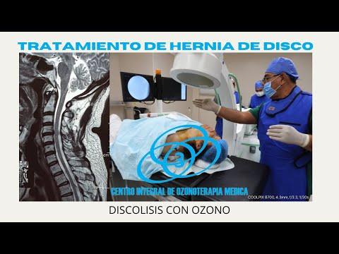 Osteocondrosis cualquier inyecciones requeridas para el tratamiento