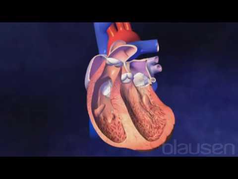 Cardiology | Clinique Générale Ste-Anne