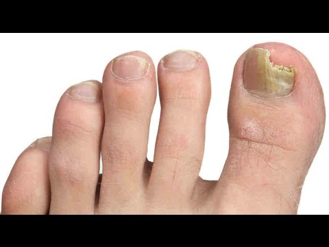La foto del hongo del pies en los pies