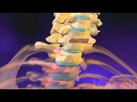 Síntomas de migraña osteocondrosis