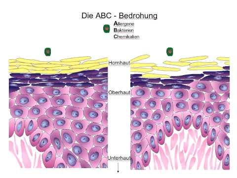 Die hormonalen Salben von der Schuppenflechte der Folge