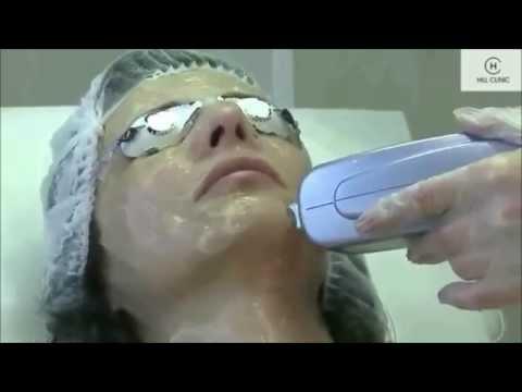 Maschera sulla persona da polietilene