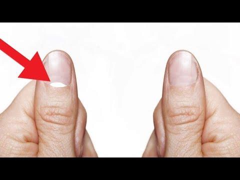 Displasia dellanca e articolazioni del gomito