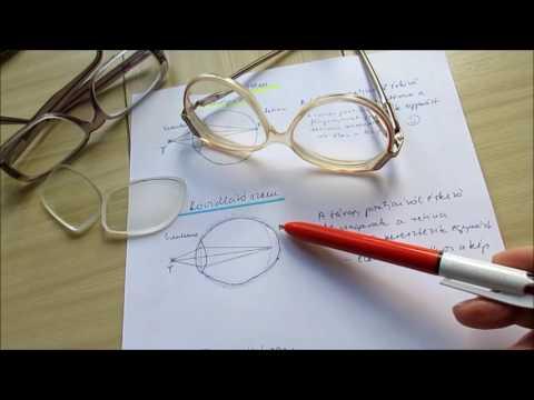 A betegek áttekintése a látáskorrekcióról