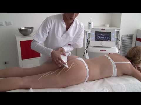 Metastasi alle articolazioni Sintomi