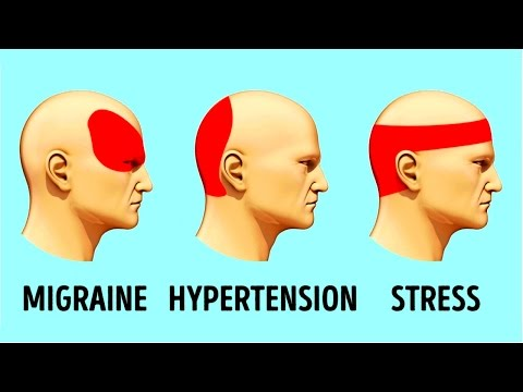 Video HOW TO GET RID OF A HEADACHE IN 5 MINUTES