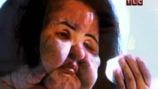 Жертвы пластической хирургии: Ханг Миоку