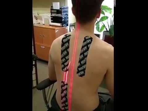 Schmerzen im Nacken in den Hals brennt