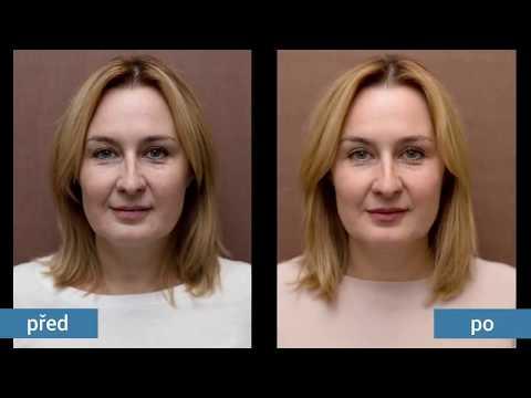 Syndrom de williams suisse proti stárnutí