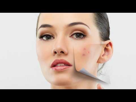 Лечебная косметика от пигментных пятен на лице в