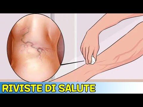 Se è possibile fare tornare indietro una gamba il bendaggio elastico a varicosity