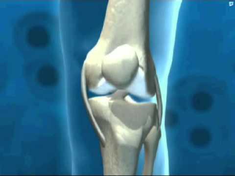 Стандартные схемы лечения остеохондрозов