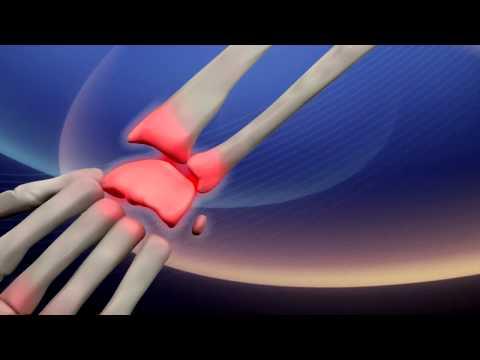 Bilder mit Rückenschmerzen mit Diagnosen